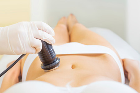 Ultrasonic Cavitation Kansas City
